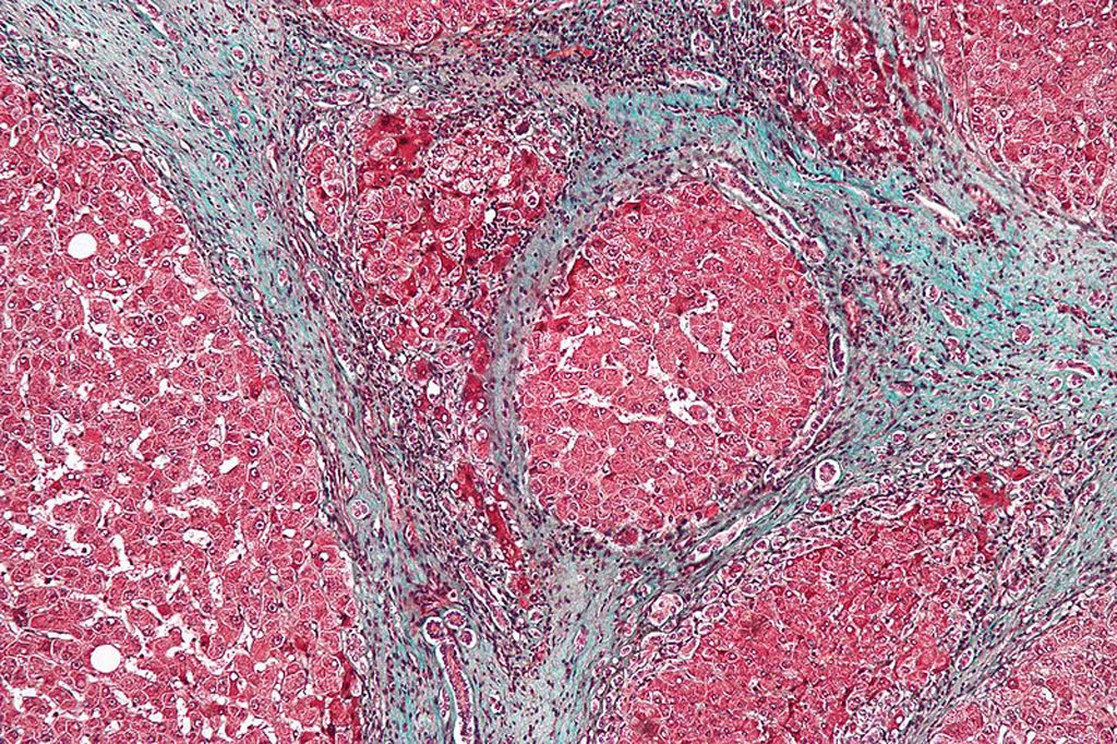 Image: A micrograph showing cirrhosis, a form of liver fibrosis (Photo courtesy of Wikimedia Commons).