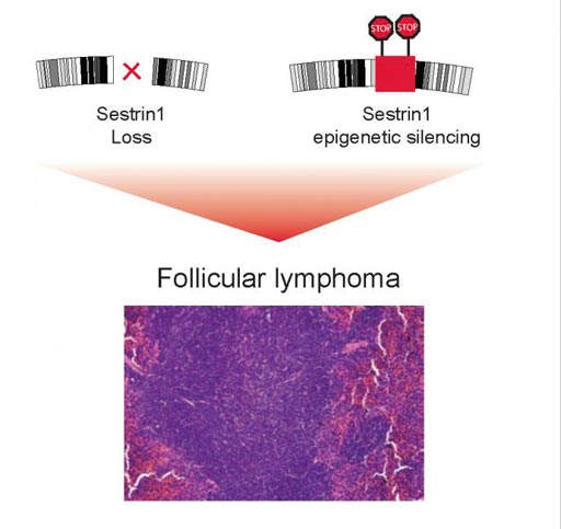 Image: Disruption of a region in chromosome 6 or epigenetic modifications of the DNA block SESTRIN1 expression contribute to the development of follicular lymphoma (Photo courtesy of Elisa Oricchio and Natalya Katanayeva, Ecole Polytechnique Fédérale de Lausanne).