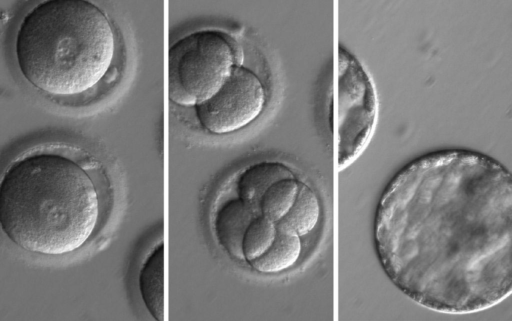Image: A sequence of photomicrographs showing the development of embryos after co-injection of a gene-correcting enzyme and sperm from a donor with a genetic mutation known to cause hypertrophic cardiomyopathy (Photo courtesy of Oregon Health & Science University).