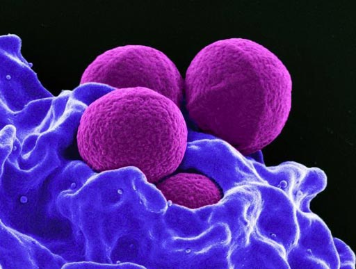 Image: Four spherical S. aureus bacteria being enveloped and destroyed by human white blood cells (Photo courtesy of the U.S. National Institute of Allergy and Infectious Diseases).