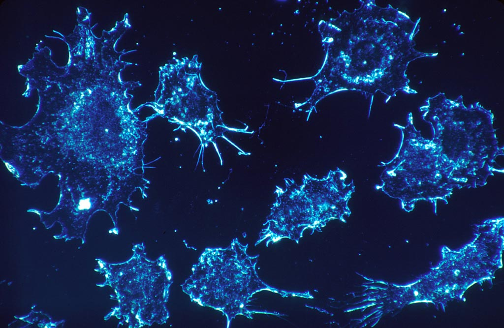 Image: Researchers have found that magnetic nanoparticles could be appropriate for use in self-regulating hyperthermia therapeutics (Photo courtesy of iStock).