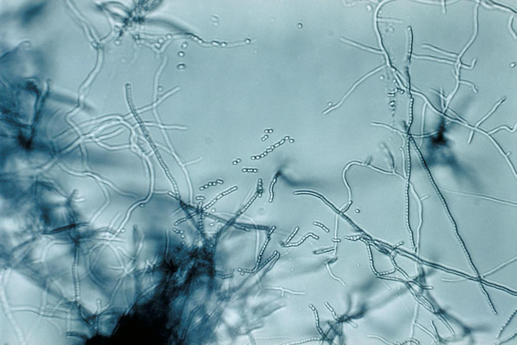 Image: A slide culture of a Streptomyces species (Photo courtesy of Wikimedia Commons).