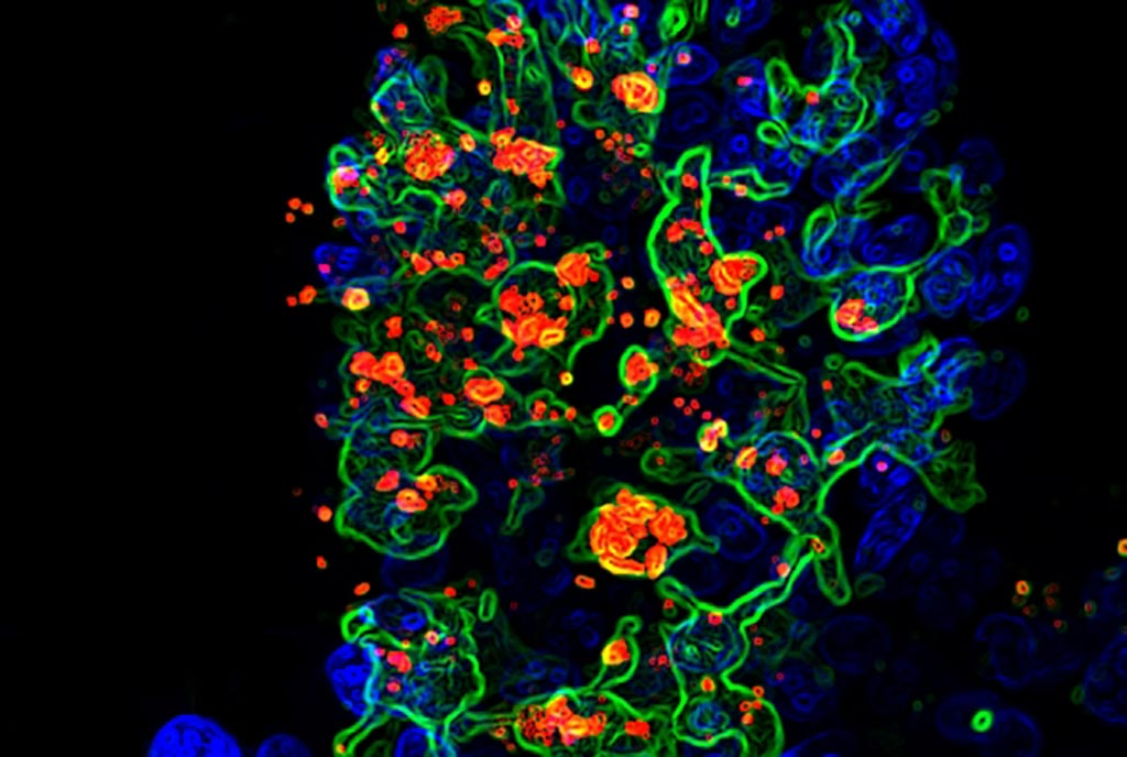 Image: A micrograph showing the opportunistic fungus Candida albicans (red) being engulfed by CX3CR1+ phagocytes (green) in the gut villi (blue) (Photo courtesy of Dr. Iliyan Iliev and Dr. Irina Leonardi, Weill Cornell Medicine).