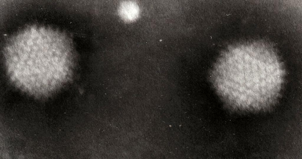 Image: Transmission electron micrograph (TEM) of two oncolytic adenovirus particles of the type modified to target pancreatic cancer cells (Photo courtesy of Wikimedia Commons).