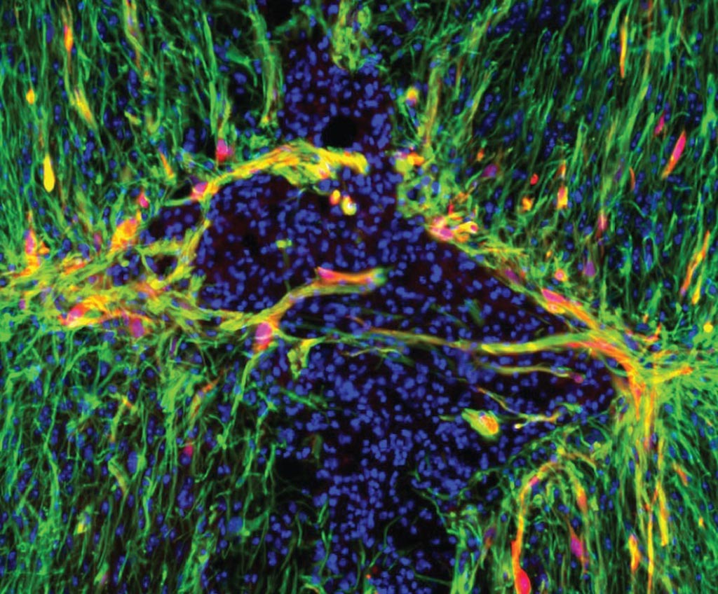 Image: Genetically modified astrocytes (red) line the lesion border in the injured spinal cord. A new mouse study showed that triggering a gene inside astrocytes activated the star-shaped cells and may improve the brain's ability to heal from a range of debilitating conditions, from stroke to concussions and spine injuries (Photo courtesy of Dr. Meifan Amy Chen, University of Texas Southwestern Medical Center).