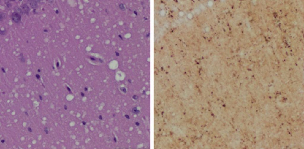 Image: A Microscopic examination of brain tissues of prion-infected animals. (Left) Staining shows spongiform degeneration. (Right) Staining shows intense misfolded prion protein (Photo courtesy of Case Western Reserve University).