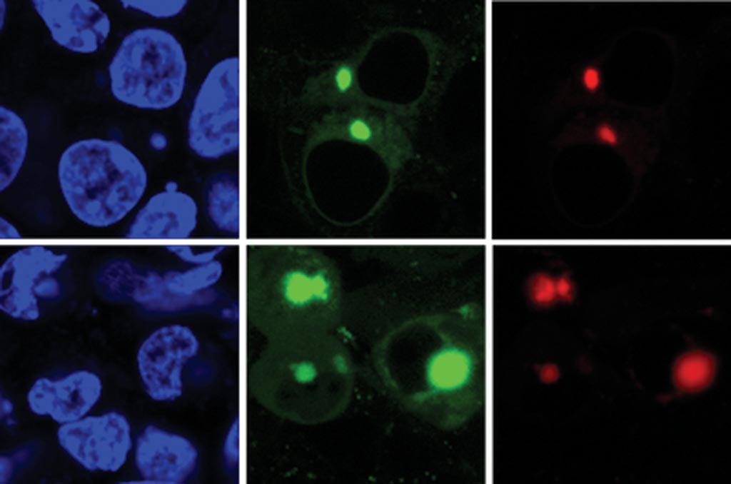 Image: The new AggTag method allows researchers to see the previously undetectable but potentially disease-causing intermediate forms of proteins as they misfold. The method uses fluorescence to simultaneously detect two different proteins (red, green) within the cell (blue) (Photo courtesy of the Zhang Laboratory, Pennsylvania State University).
