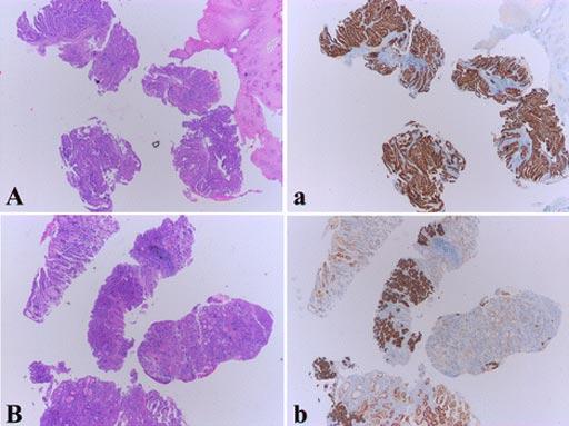 图片:活检标本中人表皮生长因子受体2(HER2)免疫组化(IHC)染色,显示瘤内同质性和异质性(照片由复旦大学提供)。
