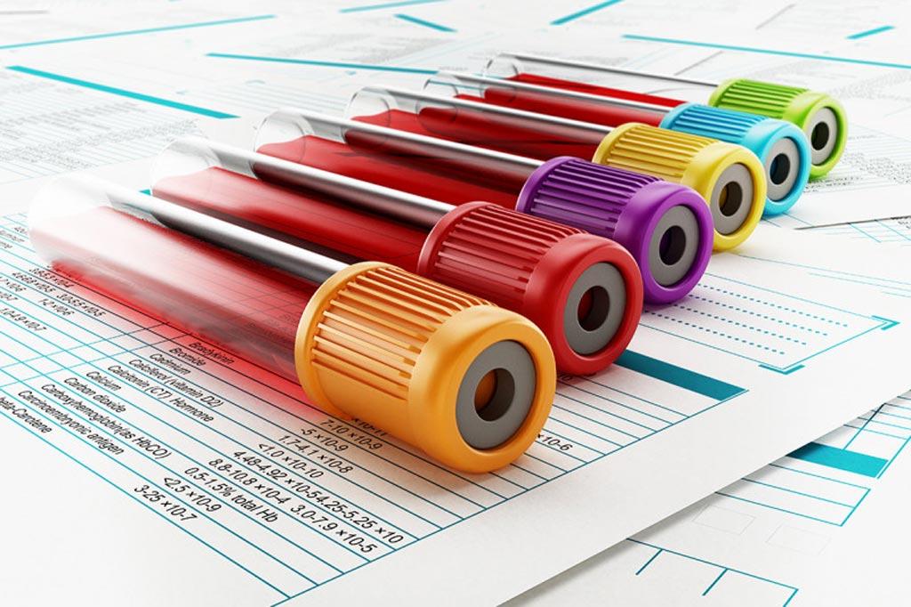 图片:一项新研究表明,一种新的基因组测序方法有助于开发癌症早期检测产品(图片蒙Sloan Kettering纪念癌症中心惠赐)。