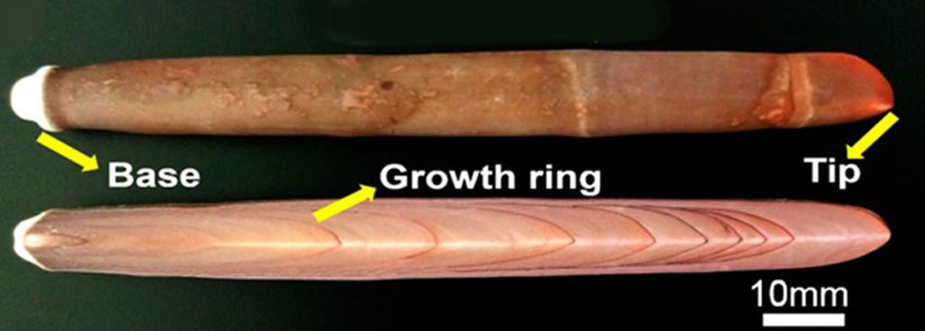 Imagen: Un nuevo estudio afirma que las espinas de erizo de mar se pueden utilizar para formar implantes de hueso biodegradable (Fotografía cortesía de la ACS).
