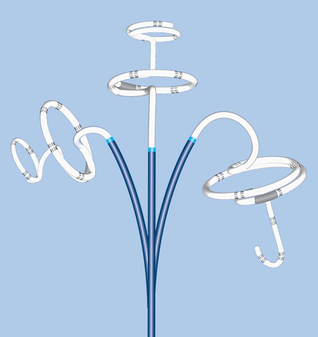 Imagen: Un sistema novedoso de ablación con catéter evita la activación de la FA (Fotografía cortesía de Adagio Medical).