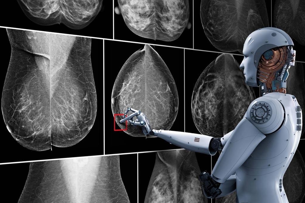 Imagen: Un sistema nuevo de inteligencia artificial (IA) podría ayudar a los patólogos a leer biopsias con mayor exactitud y conducir a una mejor detección y diagnóstico de los cánceres de mama (Fotografía cortesía de Getty Images).