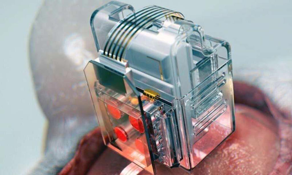 Imagen: Los cartuchos de drogas reemplazables tipo Lego y los LED ayudan a detectar neuronas específicas de interés (Fotografía cortesía de KAIST).