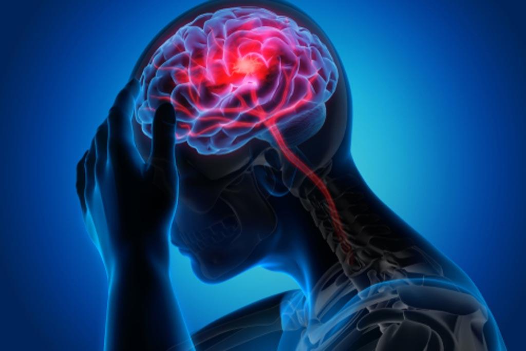 Imagen: Un estudio nuevo muestra que los accidentes cerebrovasculares silenciosos son comunes después de una cirugía no cardíaca (Fotografía cortesía de Shutterstock).