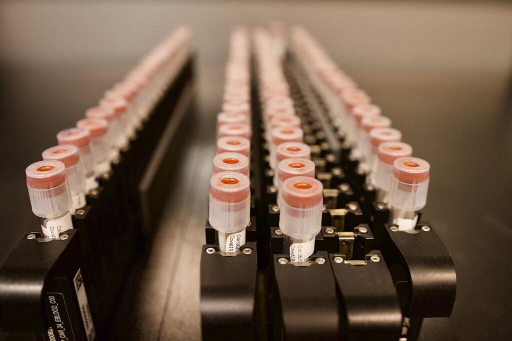 Imagen: Pruebas de COVID-19 en un laboratorio del Instituto Broad de MIT y Harvard (Fotografía cortesía de Facultad de Salud Pública Harvard T.H. Chan)