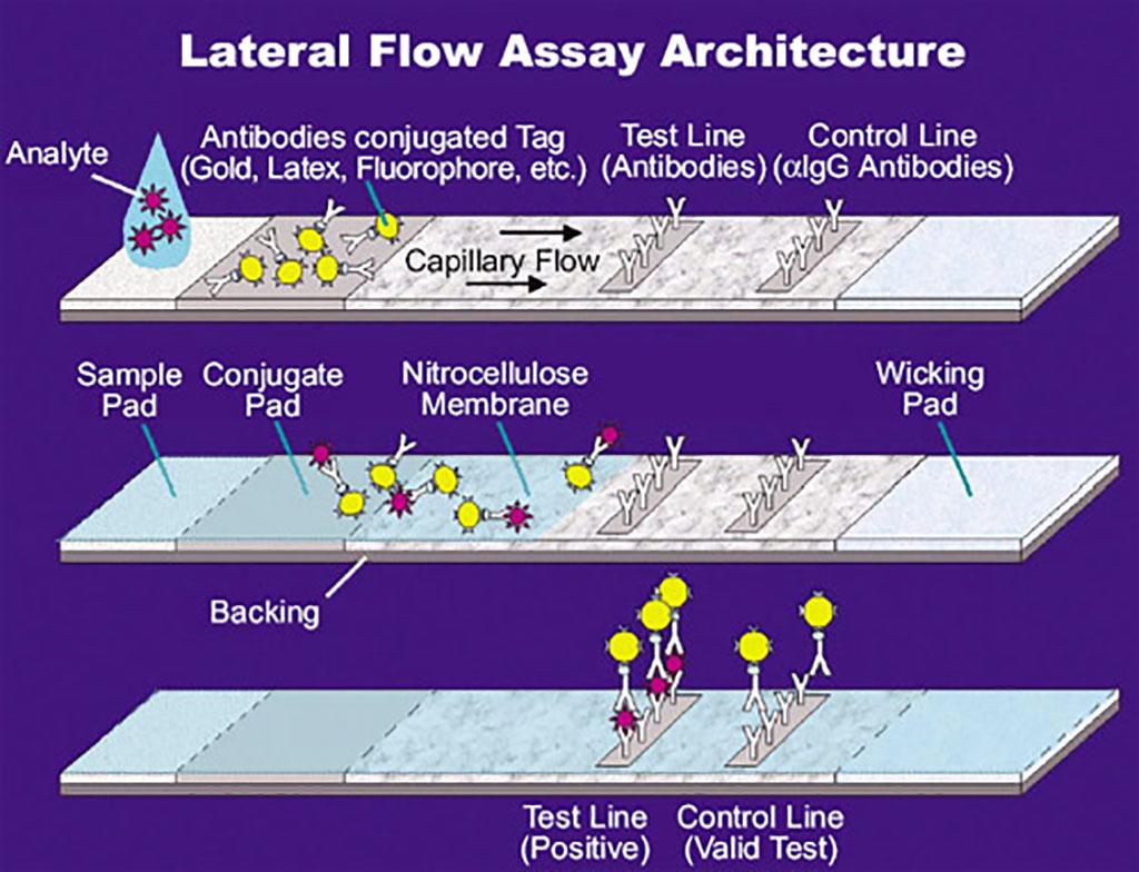 Imagen: Ilustración de un ensayo de flujo lateral (LFA) (Fotografía cortesía de la Administración Nacional de Aeronáutica y del Espacio de EUA a través de Wikimedia Commons)