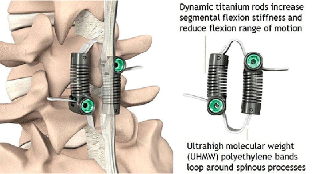 Imagen: Unir las apófisis espinales puede estabilizar la flexión (Fotografía cortesía de Empirical Spine)