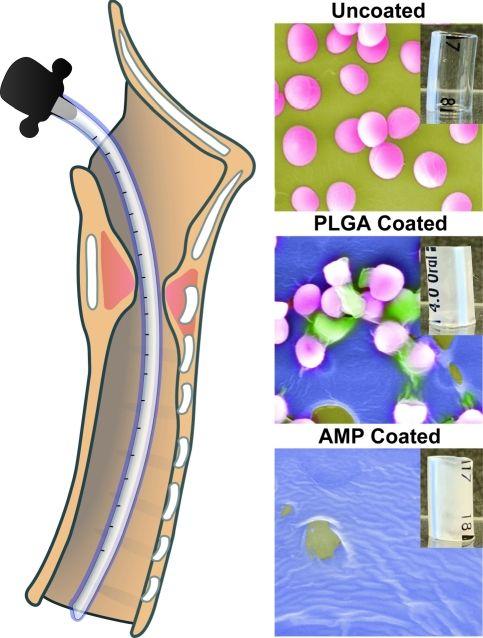 Imagen: Imágenes de microscopía electrónica de tubos ET recubiertos y no recubiertos (Fotografía cortesía de CHOP)