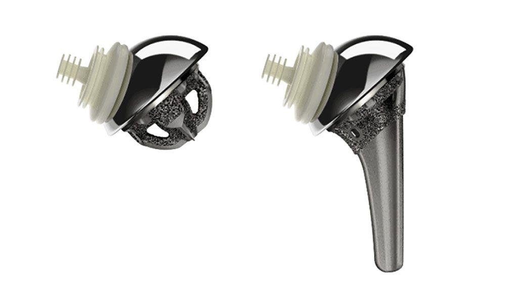 Imagen: Versiones sin vástago y con vástago del sistema de hombro Inhance (Fotografía cortesía de DePuy Synthes)