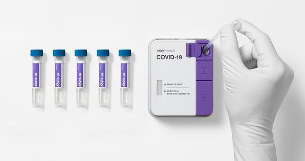 Imagen: Primera prueba de RT-PCR para la COVID-19 sin instrumentos, que recibe la AUE por la FDA para muestras mezcladas (Fotografía cortesía de Visby Medical)