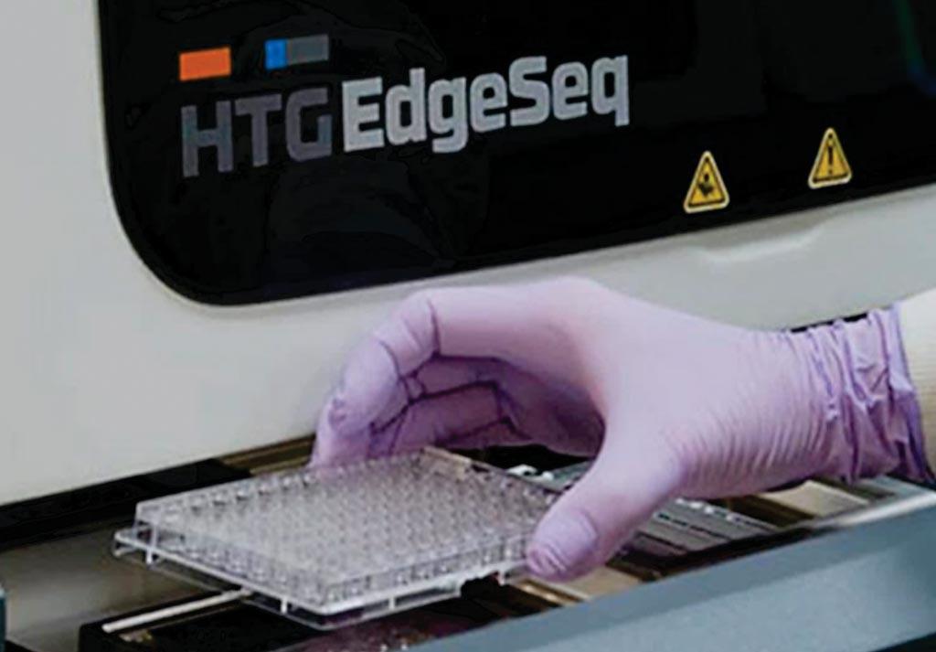 Imagen: El procesador HTG EdgeSeq, los análisis y el software analizador, facilitan el análisis de los perfiles de expresión génica de una amplia variedad de tipos de muestras (Fotografía cortesía de HTG Molecular Diagnostics).