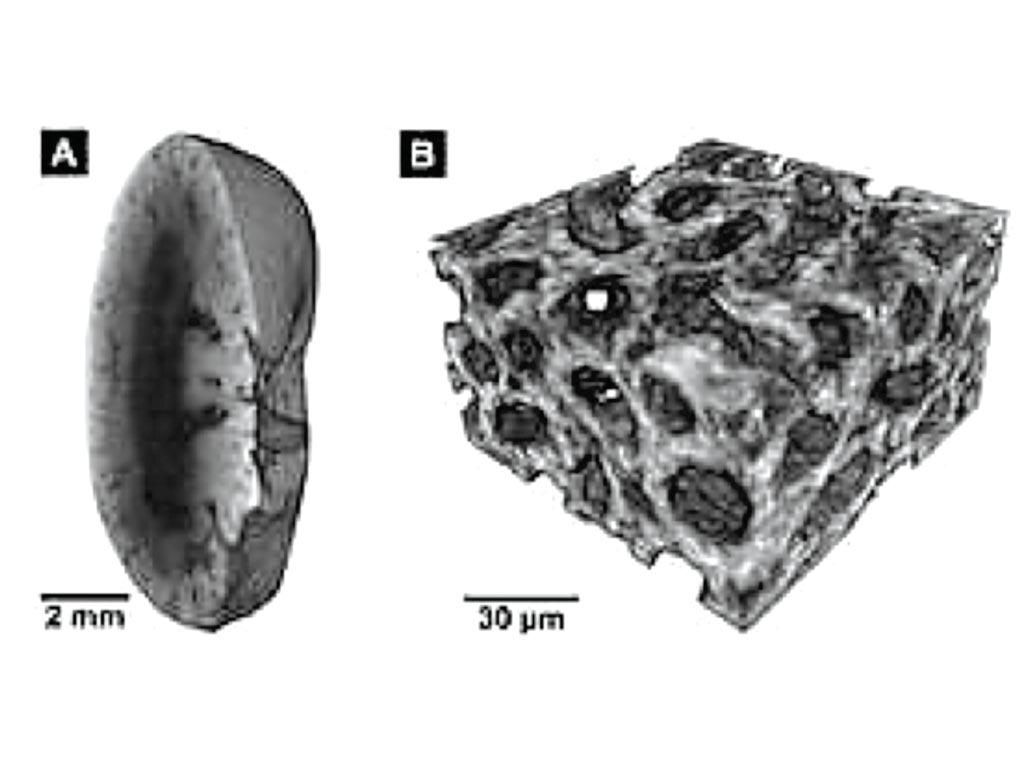 Imagen: Estas imágenes se crearon usando el nuevo método de coloración: A: imagen de Micro-TC de un riñón de ratón, B: imagen de Nano-TC del mismo tejido (Fotografía cortesía de la Universidad Tecnológica de Múnich).
