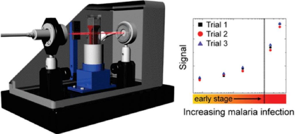 Imagen: El prototipo del sistema de diagnóstico óptico portátil (PODS) para diagnosticar la malaria (Fotografía cortesía de la Universidad del Sur de California).
