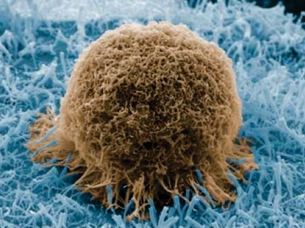Imagen: Una microfotografía electrónica de barrido (SEM) de una célula de cáncer de próstata capturada en una lámina esmerilada con nanocables de sílice (Fotografía cortesía de la Sociedad Americana de Química).