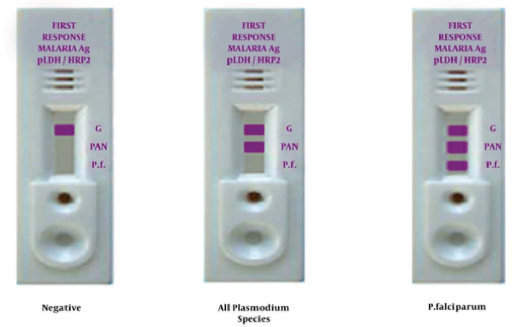 Imagen: Pruebas diagnósticas rápidas para la malaria (Fotografía cortesía de la Universidad de Ciencias Médicas Mashhad).