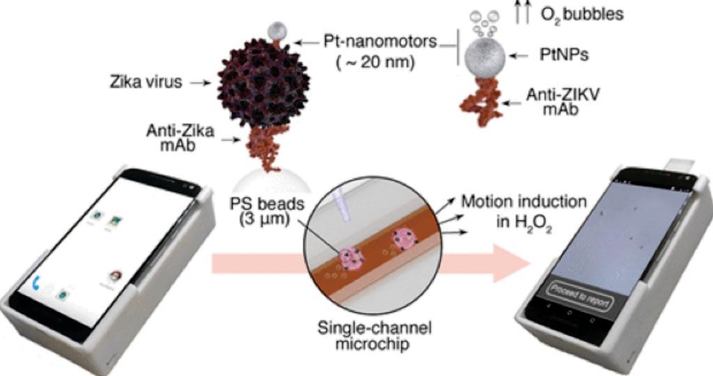 Imagen: Detección inmunológica basada en movimiento del virus del Zika utilizando nanomotores de Platino (Pt) y un teléfono celular (Fotografía cortesía del Hospital Brigham and Women\'s).