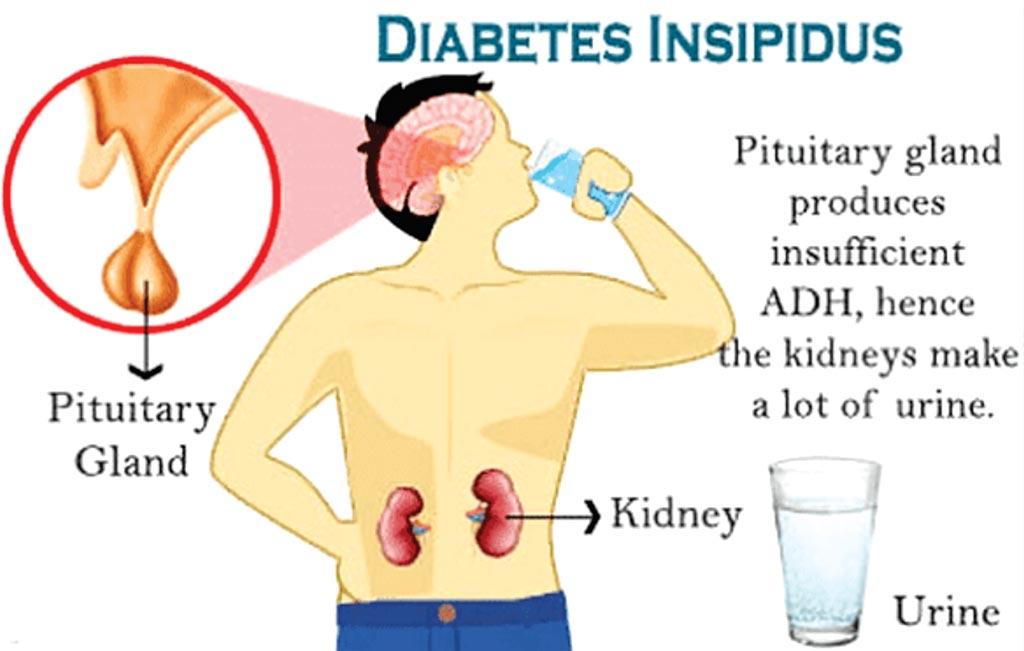 consecuencias de la diabetes insípida central