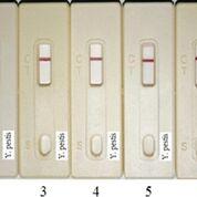 Imagen: Ensayo de especificidad de las tiras Yersinia F1. Seis cepas de Yersinia (105 UFC/mL cada una) fueron aplicadas en tiras de Yersinia-F1. Tira 1: Y. pestis yreka; 2: Y. mollaretii; 3: Y. frederiksenii; 4: Y. pseudotuberculosis; 5: Y. enterocolitica; 6: Y. intermedia; 7: solución tampón de PCB (Fotografía cortesía del Centro Médico Nacional de la Defensa).