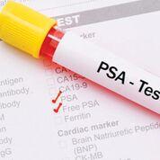Imagen: Los pacientes con enfermedad inflamatoria intestinal que tienen un PSA elevado, pueden tener riesgo de cáncer de próstata (Fotografía cortesía de la Universidad de Harvard).
