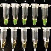 Imagen: Detección visual del ensayo RT-LAMP. Los tubos representan cepas de del BAV y los controles negativos utilizados en la inspección visual. 1-7, cepas de BAV; 8-13, otros virus; 14, control negativo (Fotografía cortesía del Instituto de Virología de Wuhan).