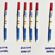 Imagen: Tiras reactivas del kit de análisis de flujo lateral de antígeno criptocócico IMMY (LFA) (Fotografía cortesía del Instituto de Investigación Médica, Kuala Lumpur, Malasia).