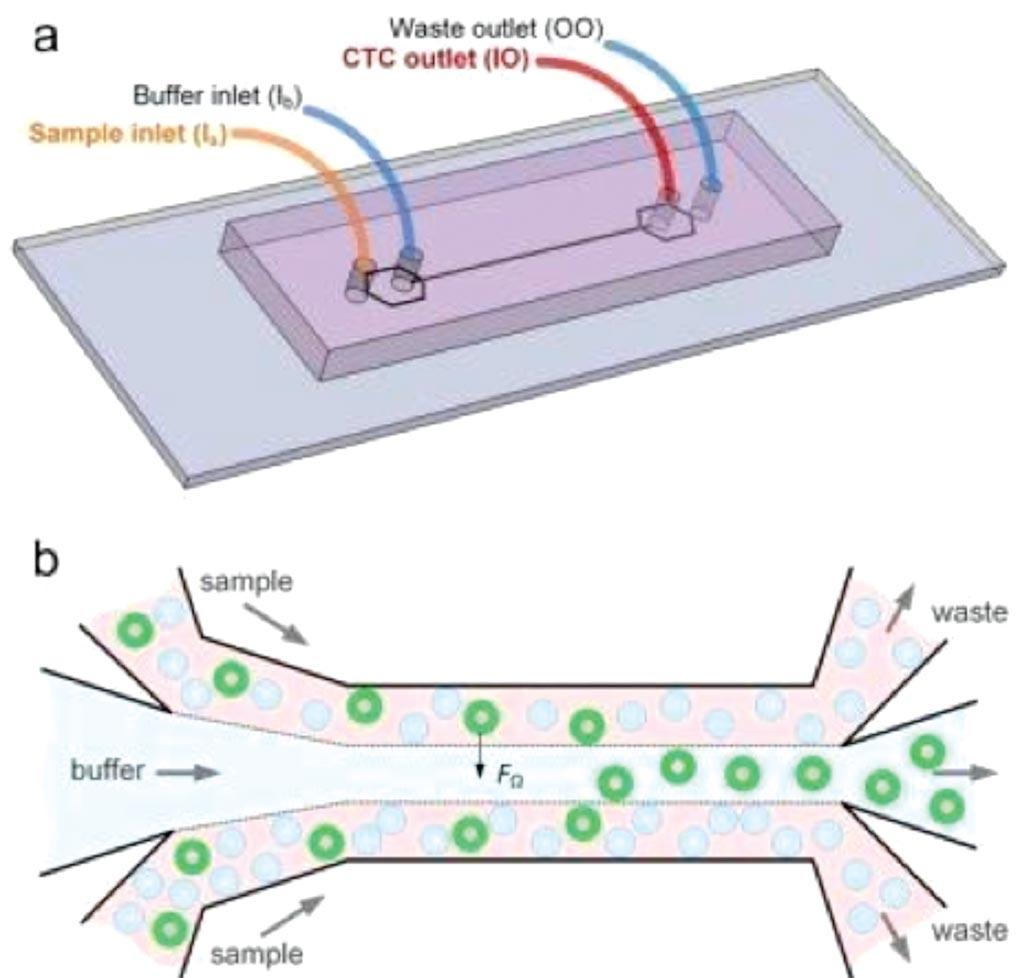 Imagen: Un diagrama muestra cómo el dispositivo de microfluidos separa las células cancerosas de la sangre. Los círculos verdes representan células cancerosas (Fotografía cortesía del profesor Ian Papautsky, PhD).