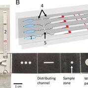 Imagen: Un dispositivo microfluídico basado en papel permite la detección de paludismo múltiple en sangre mediante la tecnología LAMP (Fotografía cortesía de la Universidad de Glasgow).