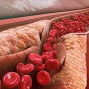 Imagen: Se ha asociado el LDL de partículas pequeñas con la progresión de la aterosclerosis y el bloqueo de la luz de la arteria, ya que puede transportar el colesterol a los vasos más pequeños. A medida que el ateroma se agranda, la pared arterial se rompe y libera coágulos de sangre que conducen al estrechamiento de la arteria. Pero el LDL también es esencial para transportar los lípidos que mantienen vivo al cuerpo humano, incluso en esos pequeños vasos (Fotografía cortesía de Wikipedia).