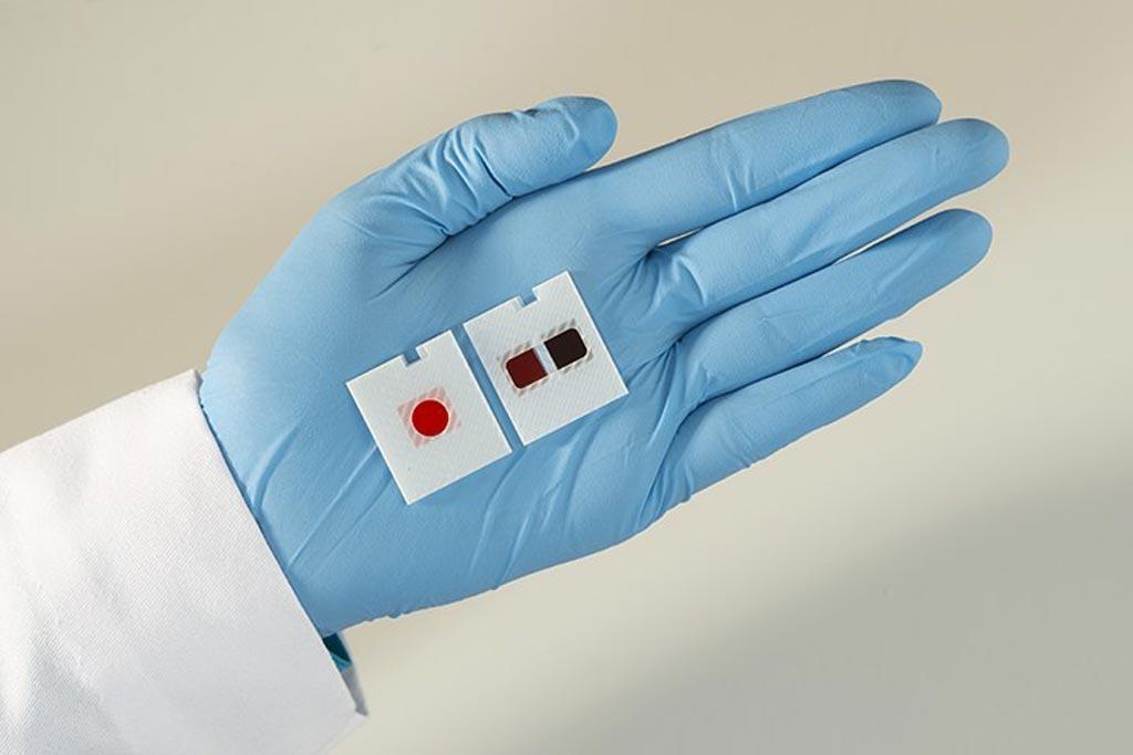 Imagen: Láminas de productos de química VITROS de pruebas múltiples (Fotografía cortesía de Ortho Clinical Diagnostics).