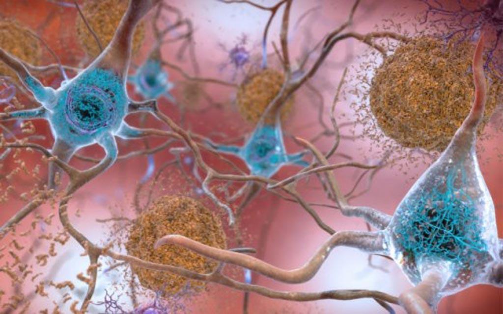 Imagen: En los cerebros afectados por la enfermedad de Alzheimer, los niveles anormales de la proteína beta-amiloide se agrupan para formar placas (vistas en marrón) que se acumulan entre las neuronas y alteran la función celular. Las acumulaciones anormales de la proteína tau forman ovillos (vistos en azul) dentro de las neuronas, dañando la comunicación sináptica entre las células nerviosas (Fotografía cortesía del Instituto Nacional sobre el Envejecimiento, EE. UU.).