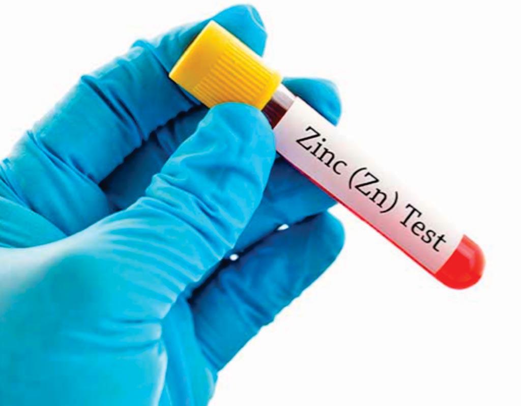 Las deficiencias de micronutrientes, especialmente el zinc, son comunes en la enfermedad celíaca contemporánea (Fotografía cortesía de Nan Schiller).