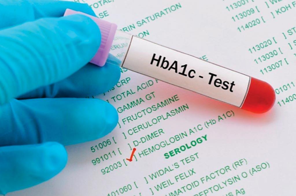 El análisis de sangre de hemoglobina glucosilada (HbA1c) proporciona un nivel promedio de azúcar en la sangre para los últimos dos o tres meses (Fotografía cortesía de HealthEngine).