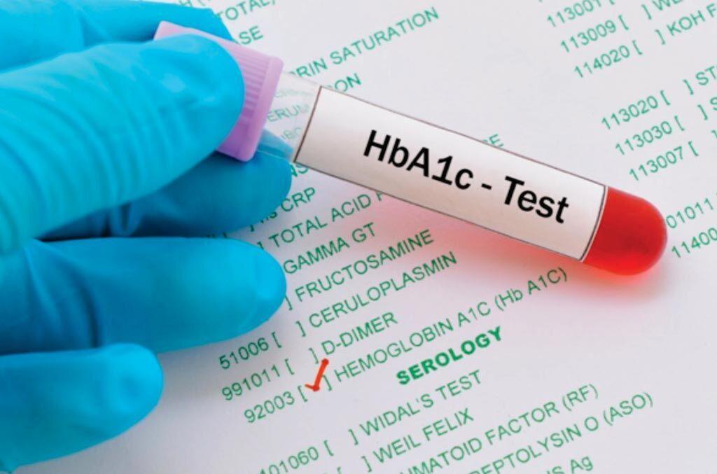 diagnóstico por primera vez de diabetes a1c