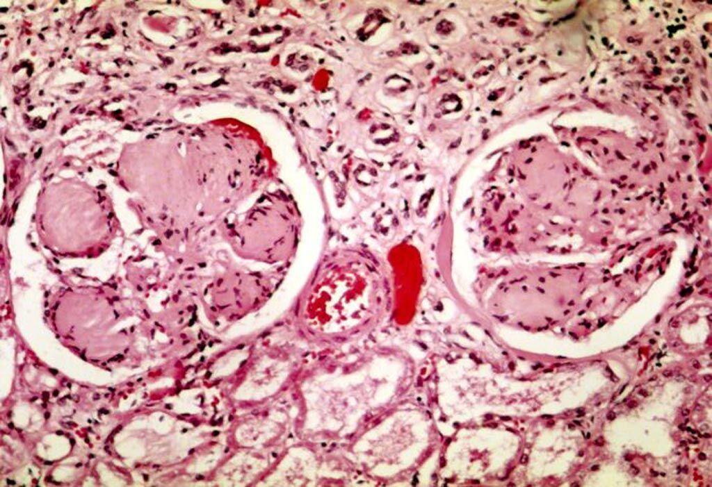 Imagen: Una microfotografía que muestra dos glomérulos en la enfermedad renal diabética: las áreas acelulares de color púrpura claro dentro de los mechones capilares son los depósitos destructivos de la matriz mesangial (Fotografía cortesía de Wikimedia Commons).