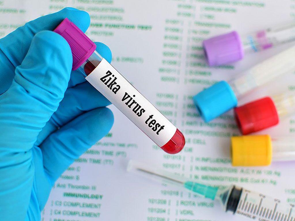 Imagen: Examen de sangre para Zika MAC-ELISA: la IgM del virus del Zika persiste hasta 25 meses después del inicio de los síntomas (Fotografía cortesía de Darren Ellis)
