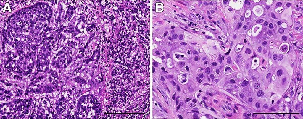 Imagen: Variantes morfológicas del cáncer de mama triple negativo (TNBC) con diferentes alteraciones genéticas. A: TNBC con características histológicas basales que contienen un infiltrado linfocítico estromal prominente; este tumor tenía amplificación de MYC. B: TNBC con diferenciación apocrina y una mutación en PI3KCA. Las células tumorales tienen abundante citoplasma eosinofílico, núcleos redondos y nucleolos prominentes (Fotografía cortesía de la Facultad de Medicina Geisel).