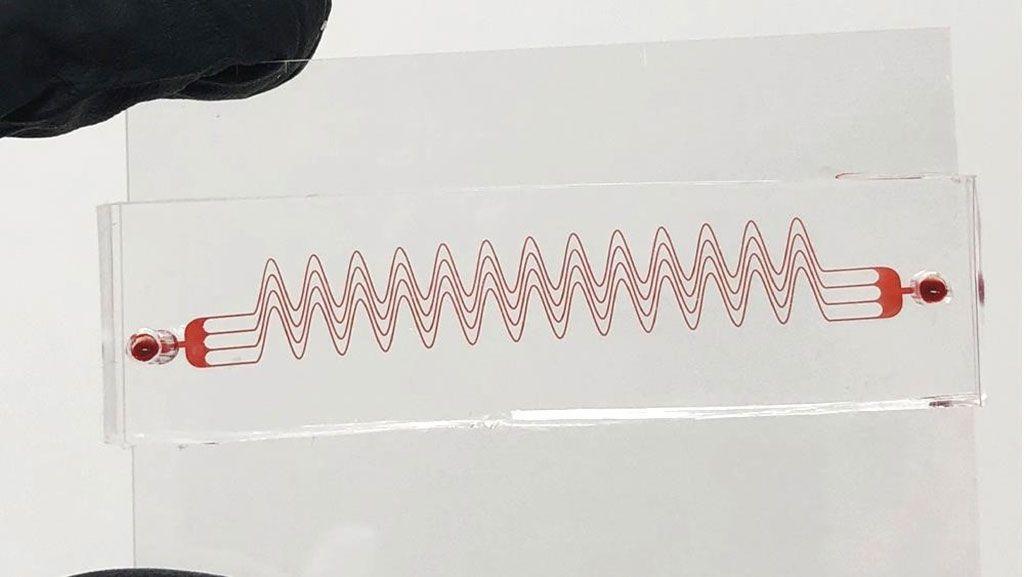 Imagen: El dispositivo microfluídico desarrollado para ayudar a detectar coágulos sanguíneos (Fotografía cortesía de la Facultad de Ingeniería Texas A&M).
