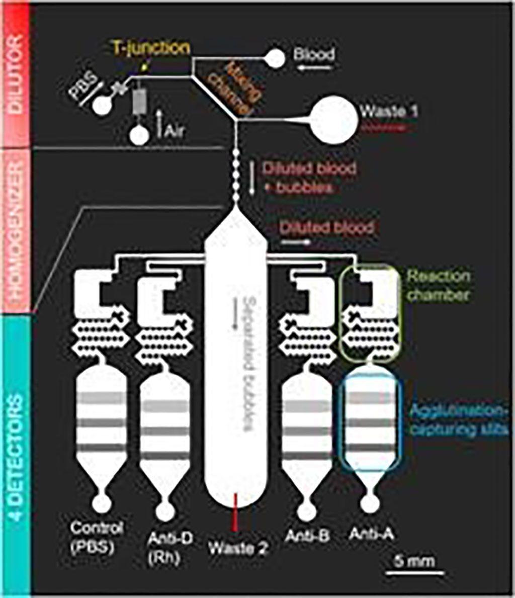 Imagen: Diagrama esquemático del chip de clasificación de sangre totalmente automático que utiliza las burbujas para una rápida dilución y detección (Fotografía cortesía de la Universidad de Ciencias de Tokio).