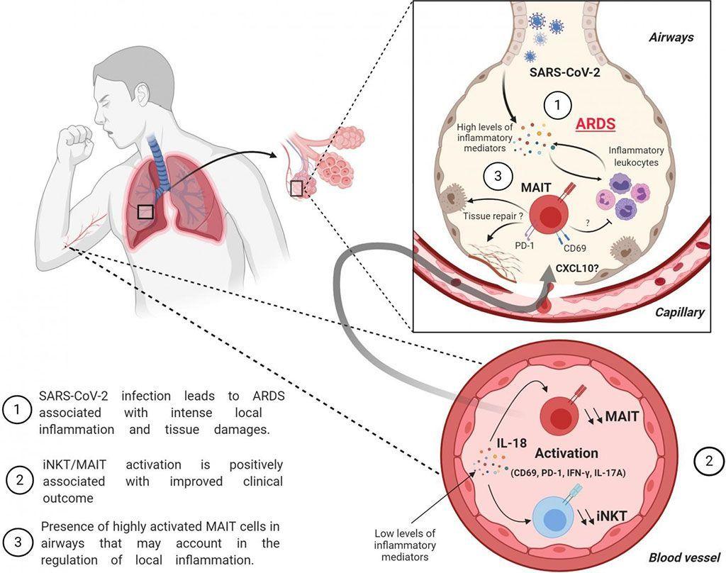 Imagen: El aumento de la activación de las células MAIT e iNKT se asocia con un mejor resultado en pacientes con COVID-19 grave (Fotografía cortesía de la Universidad de Tours).