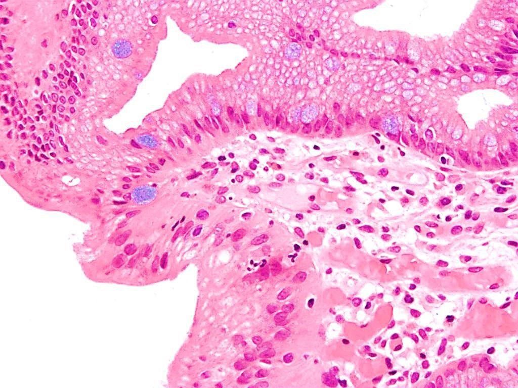 Imagen: Microfotografía de la histopatología del esófago de Barrett que muestra las células características caliciformes (coloración de azul de Alciano) (Fotografía cortesía de Nephron)